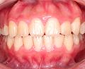 健康できれいな歯並びになるために!/一般歯科 小児歯科 京都市伏見区